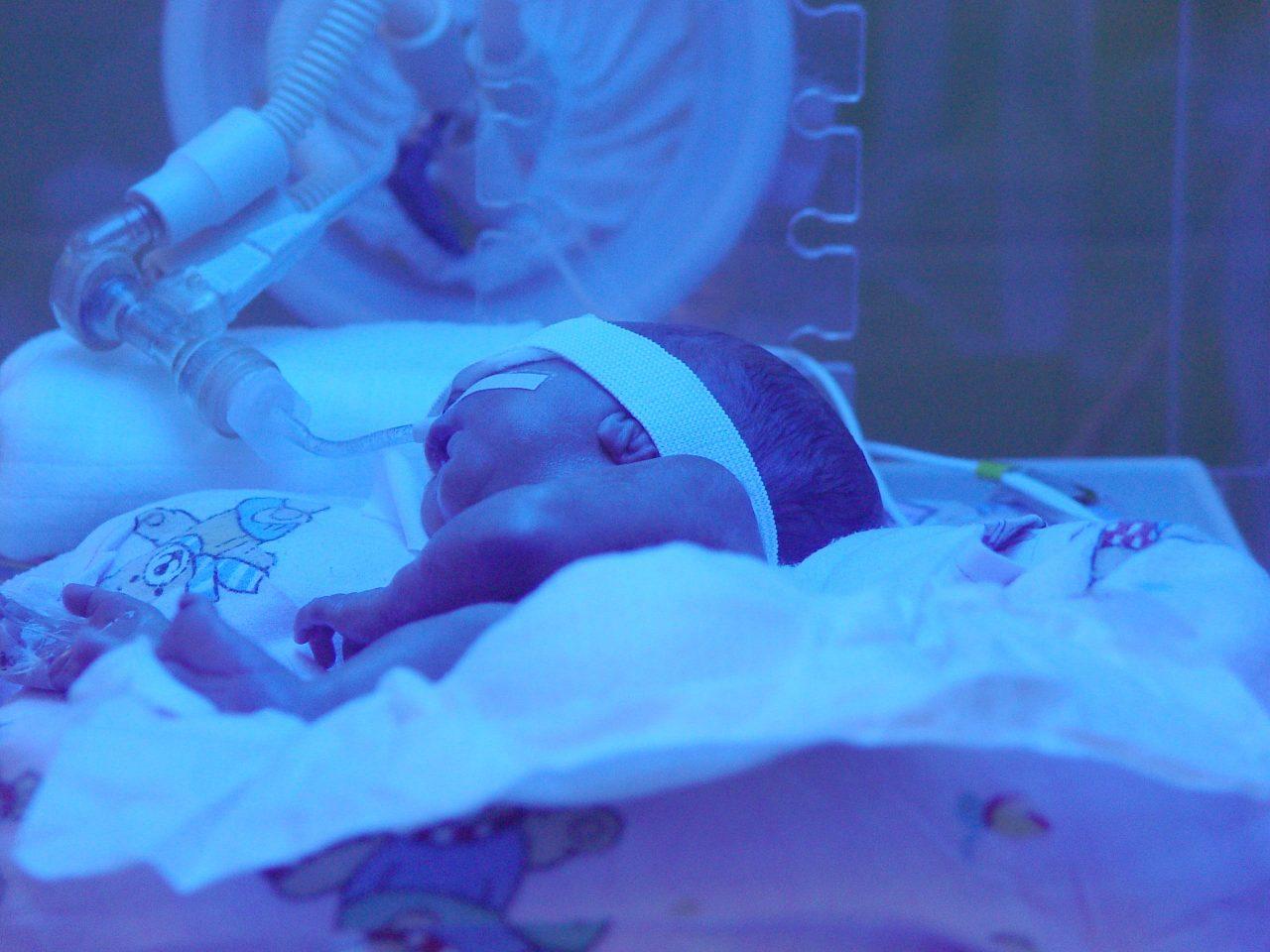 Desarrollo del Bebé Prematuro